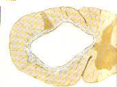 siringomielia02